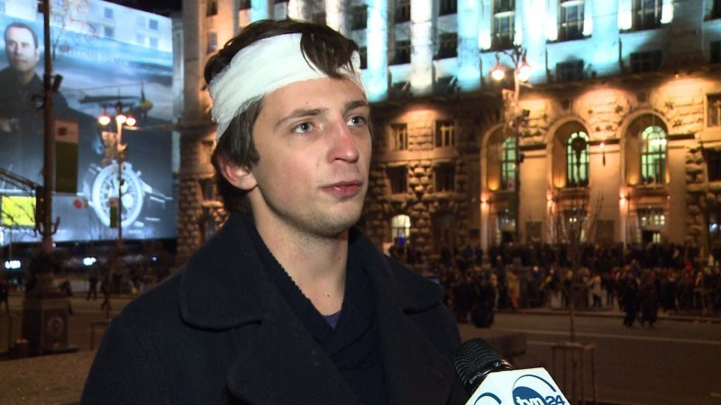Павел Пеньонжек — серед побитих Беркутом журналістів на Майдані Фото: tvn24.pl